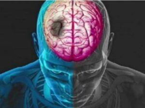 कोरोना विषाणूचा मानवी मेंदूवरही हल्ला…