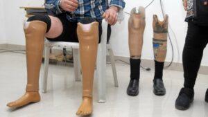 कणकवली रोटरीच्या वतीने दिव्यांगांचे जयपूर कृत्रिम हात, पाय साठी मोजमाप