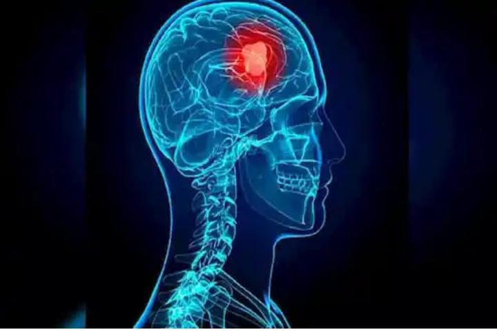 फु्फुसांतून गायब झाला तरी मेंदूत लपून बसतो कोरोनाव्हायरस……